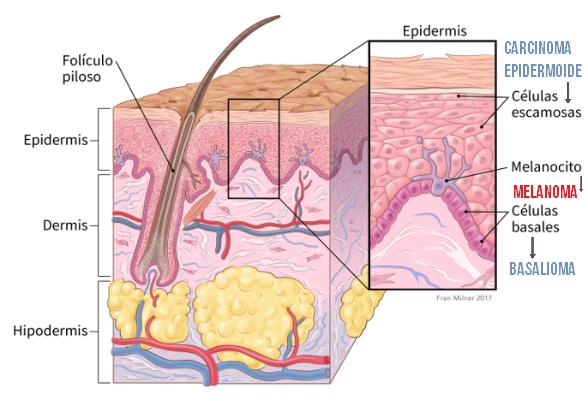 El cáncer de piel puede prevenirse, descubre los síntomas.